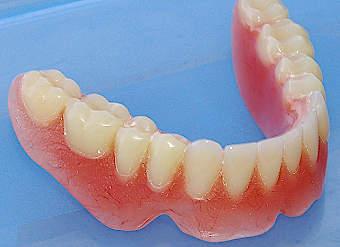 Cuanto cuesta una protesis dental removible